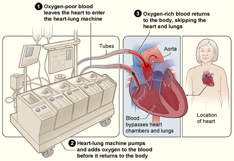 Heart-lung_bypass